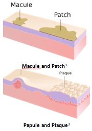 Approach to Skin Lesions | Learn Pediatrics